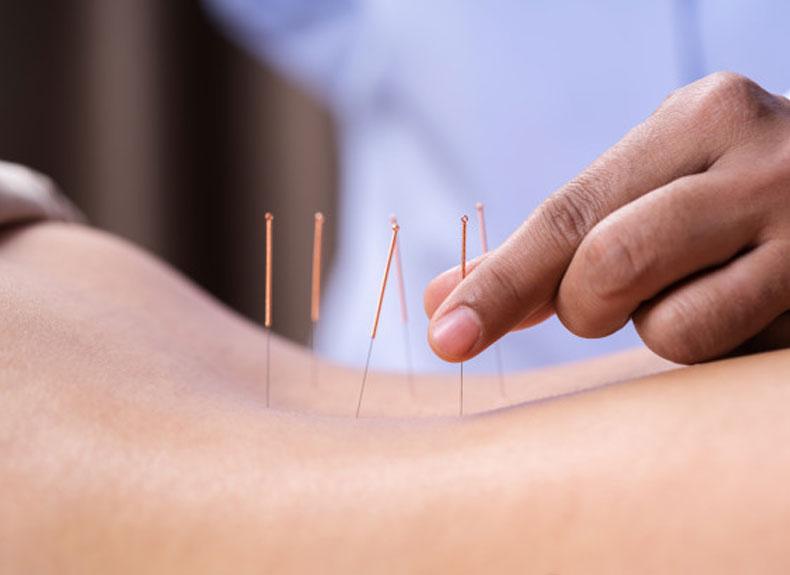 Western Acupuncture in Boyne Island